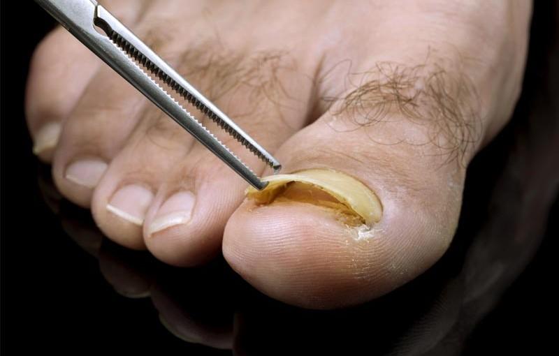 How to Get Rid of Toenail Fungus | Sri Sai Super Speciality Hospital ...